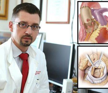 Rekonstruiraju srčane zaliske: Pacijenti sedmi dan idu kući…