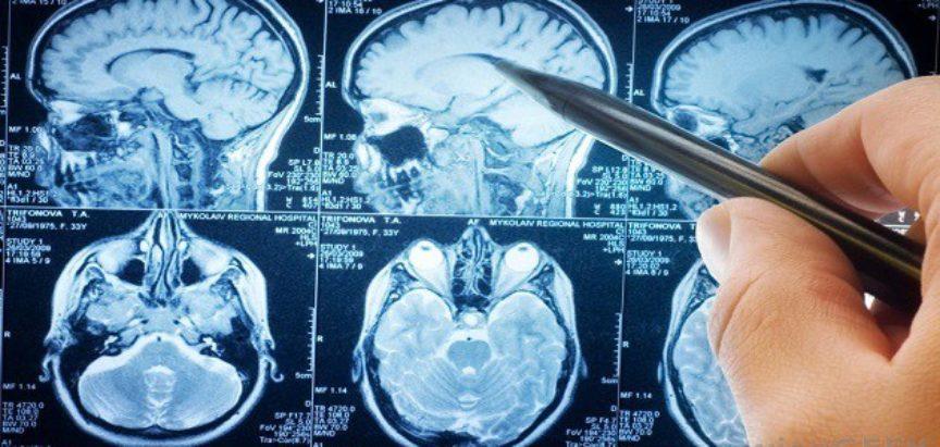 Liječnici krivom pacijentu operirali mozak