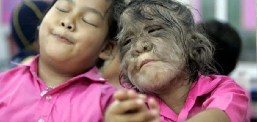 Djeca zbog pogrešne terapije sliče na vukodlake