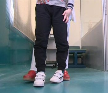 MEDICINSKO ČUDO U HRVATSKOJ Nepokretni dječak prohodao tri mjeseca nakon operacije