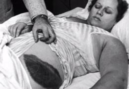 Žena koju je pogodio meteorit