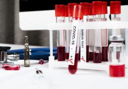 U Bosni i Hercegovini 166 novozaraženih koronavirusom, 10 preminulih