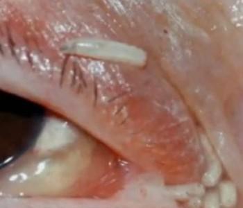 Ženi u Kanadi izvadili 120 crva iz očiju i nosa